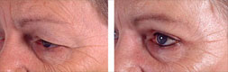 blepharoplastie superieure, photo avant-apres